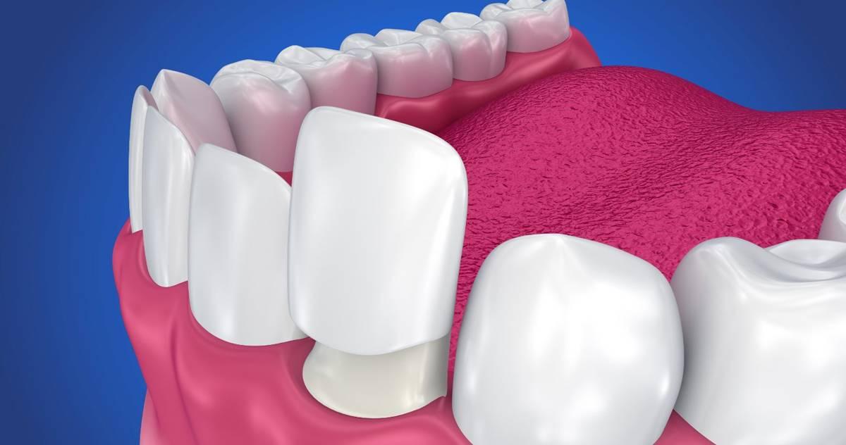 zobne luske cena